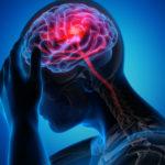 REAGUJTE NA VREME: Pre moždanog udara, telo šalje ova upozorenja!