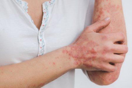 SVRAB KOŽE : Jedan od najneobičnijih simptoma neke druge bolesti